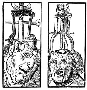 trepanacija lobanje
